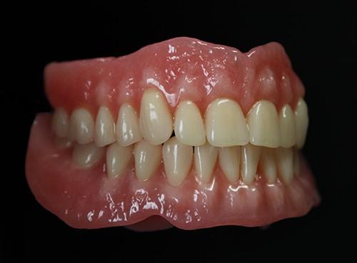 Prothèse amovible partielle et complète